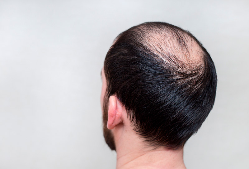 Men's Grooming Tips: Combating Hair Loss